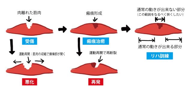 洛西口・桂川で肉離れでお悩み方は、京都中丸整体カイロプラクティックへ