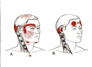 頭痛の関連痛 図