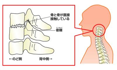 変形性頸椎症の特徴 画像
