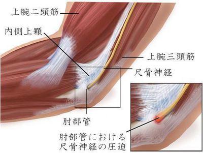 肘部管 画像