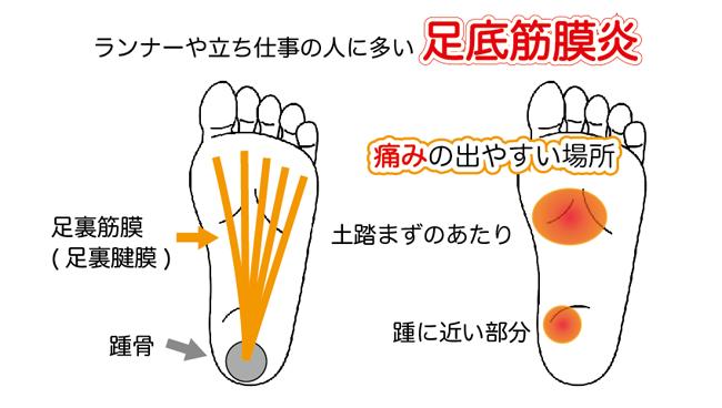 足の裏の痛みで京都市西京区の整体をお探しの方は、京都中丸整体カイロプラクティックへ