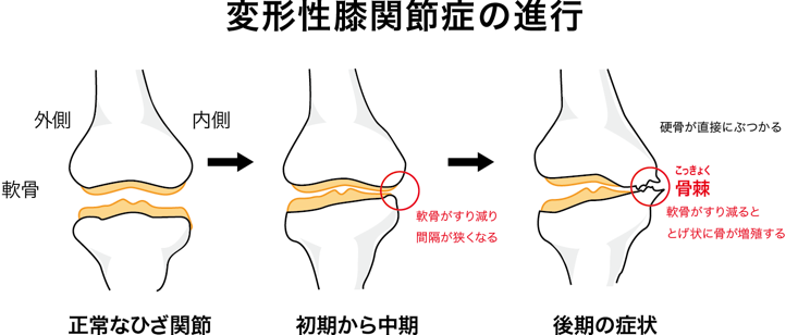 膝の痛みでお悩みなら京都市西京区の整体院【京都中丸整体カイロプラクティックへ】