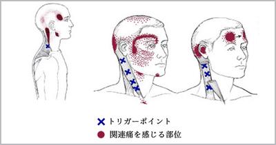 トリガーポイントと関連痛をだす部位 画像