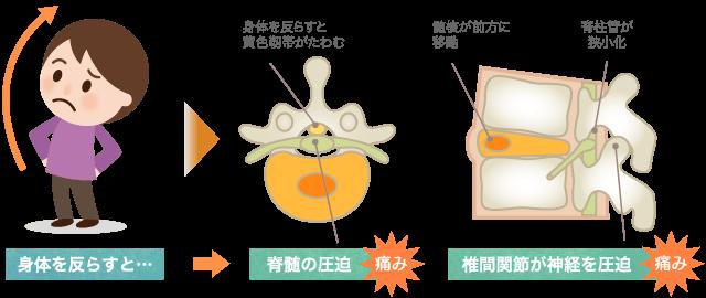 椎間関節症の画像