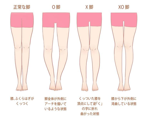 自分の足はO脚かそれともX脚か 画像